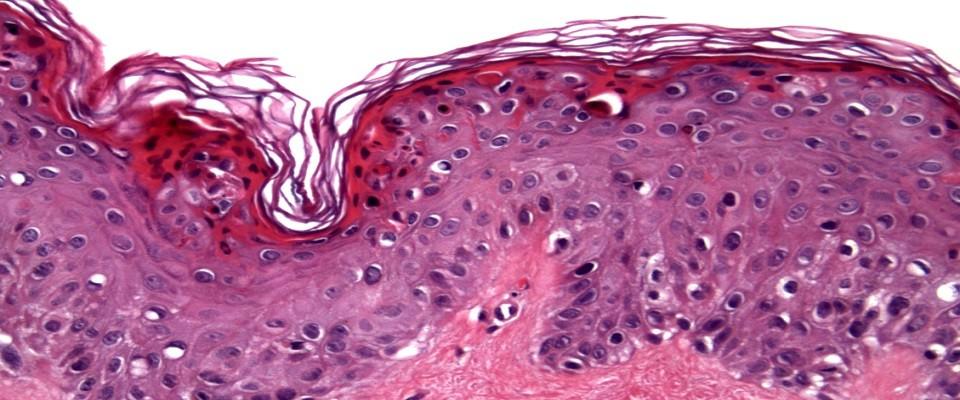 Delta Dermatopathology